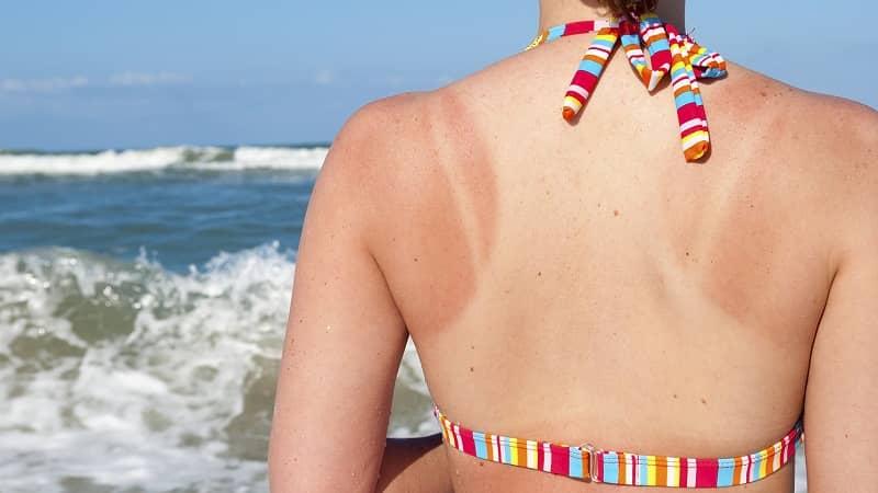 chăm sóc da bị cháy nắng